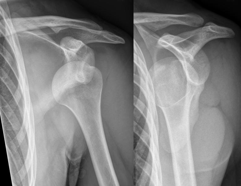 Симптомы и причины вывиха плеча