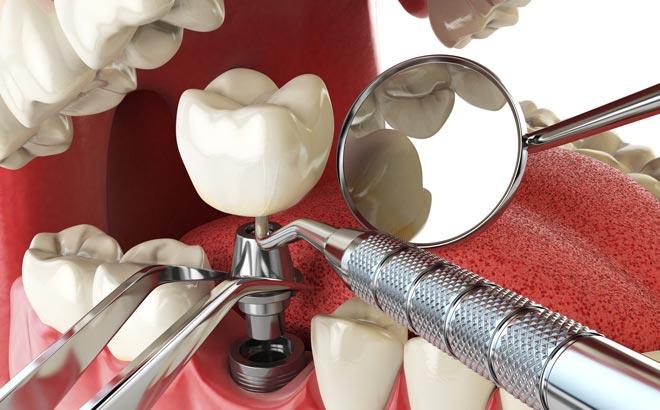 Современные материалы и технологии в стоматологии